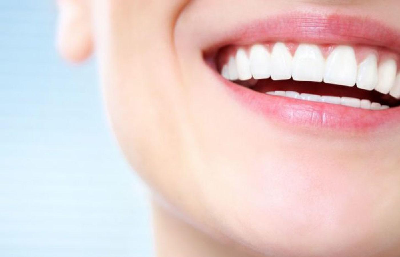 Отбеливание зубов. Методы. Плюсы и минусы процедуры.